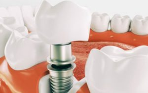 Dental Implants in Kampala at Bhandari Dental